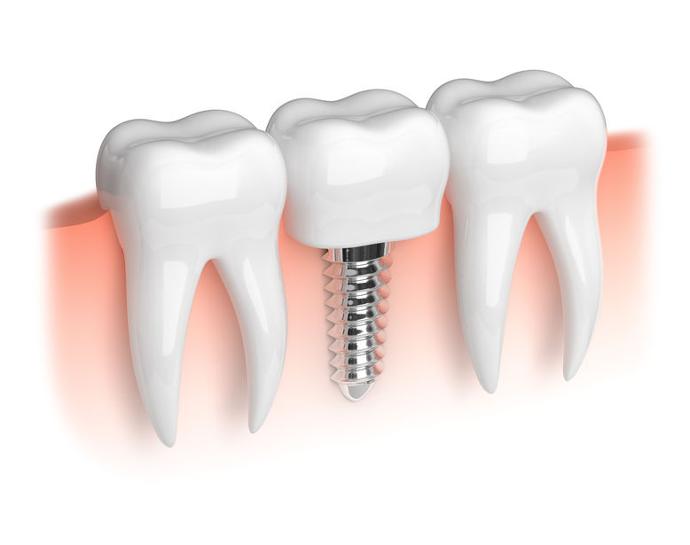 implantes.canodental