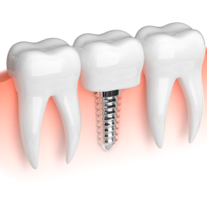 implantes.canodental3